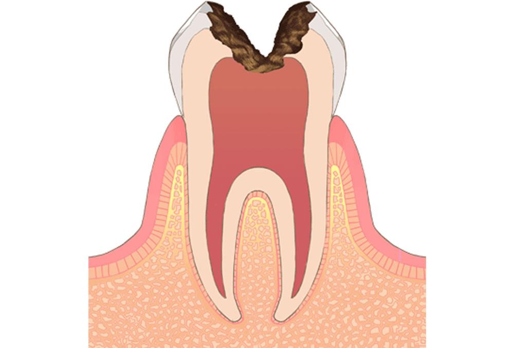 歯髄(神経)に達した虫歯