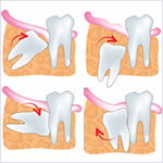 親知らずの抜歯・移植