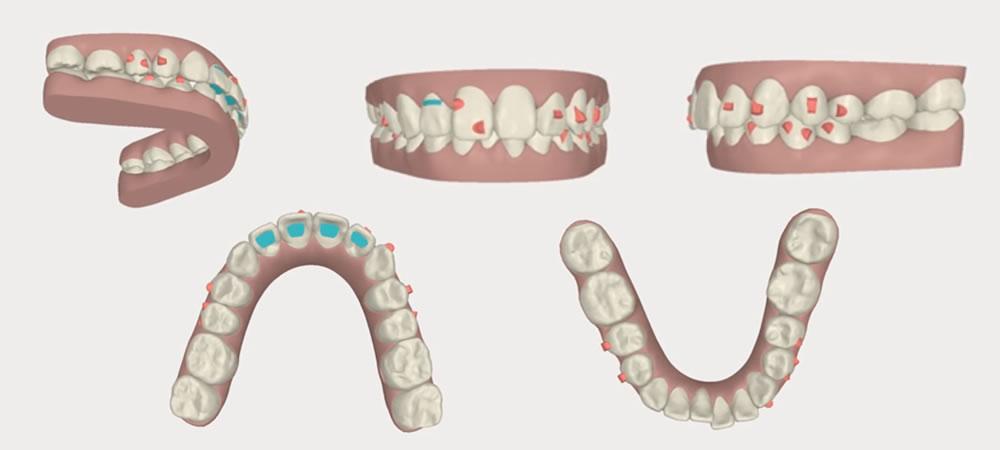 抜歯をしない矯正治療