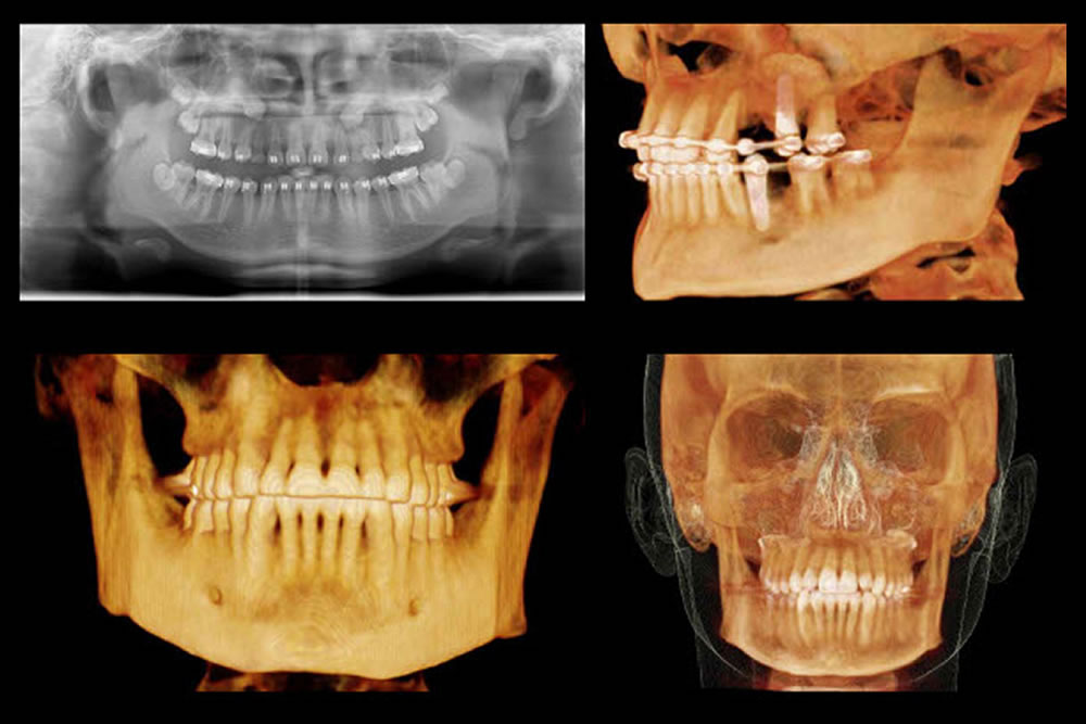 抜歯後の侵襲